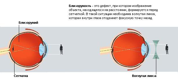 Лазерная коррекция зрения после коагуляции